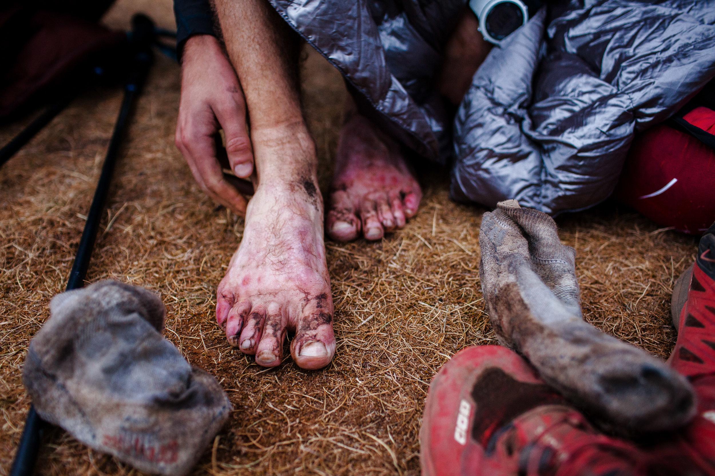 Elliott's battered feet after running the Fat Dog 120.