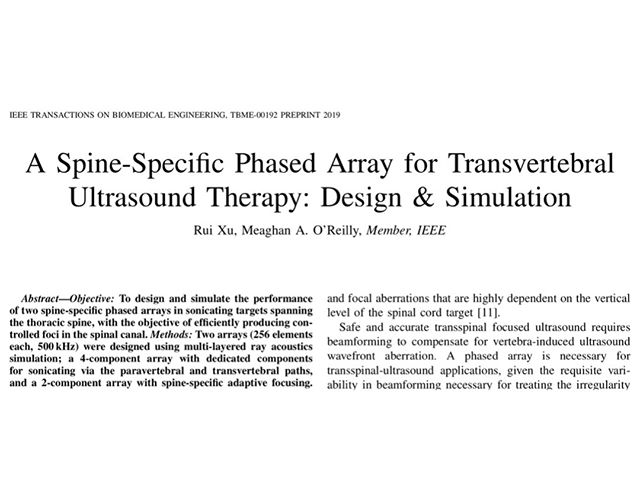 Congratulations to @rui__xu for his new #spine-specific #ultrasound array design paper in IEEE! Rui is an MBP PhD student in Dr. Meaghan O'Reilly's lab at @sunnybrookhsc. We're so proud of you Rui! 🤩🤩. . Go read all about it here: https://ieeexplore.ieee.org/document/8693812 . .  #accomplishment #proud #mbp #phd #success #publications #papers #mbpgsa