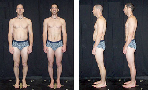 BEFORE & AFTER ROLFING 10-SERIES