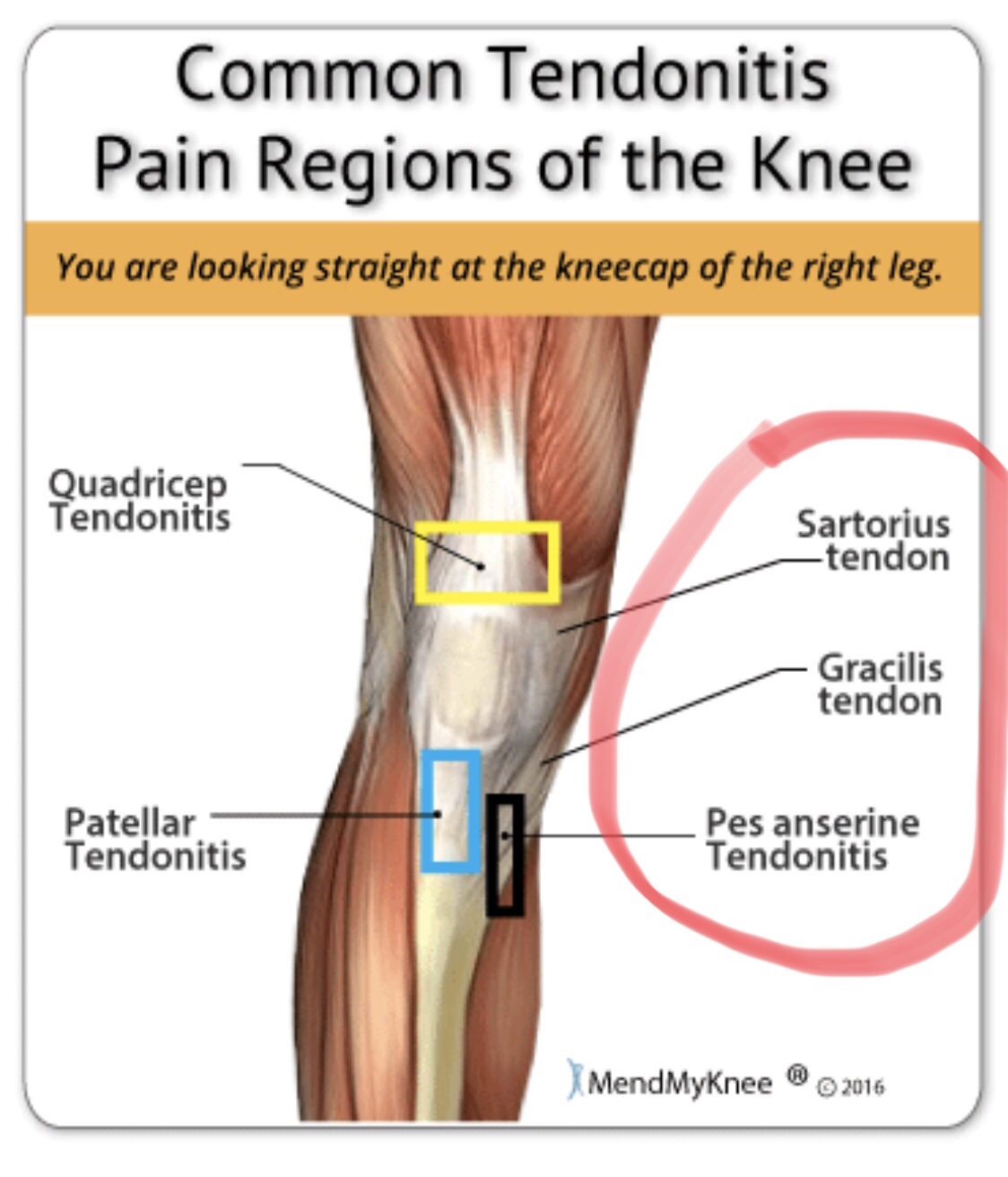 The circled tendons are angry at me  PC: mendmyknee.com
