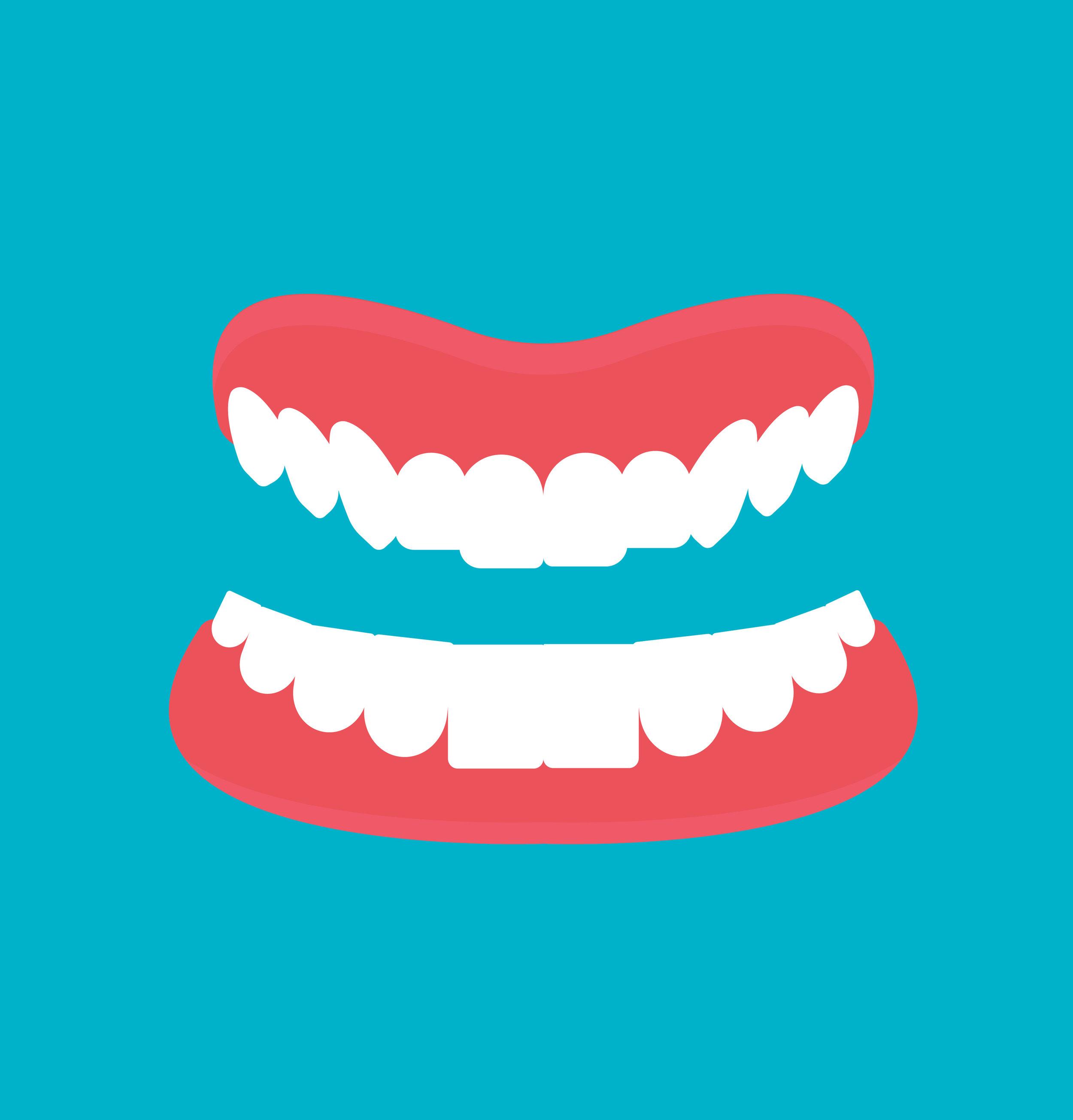 Dental Implant Cartoon Smile