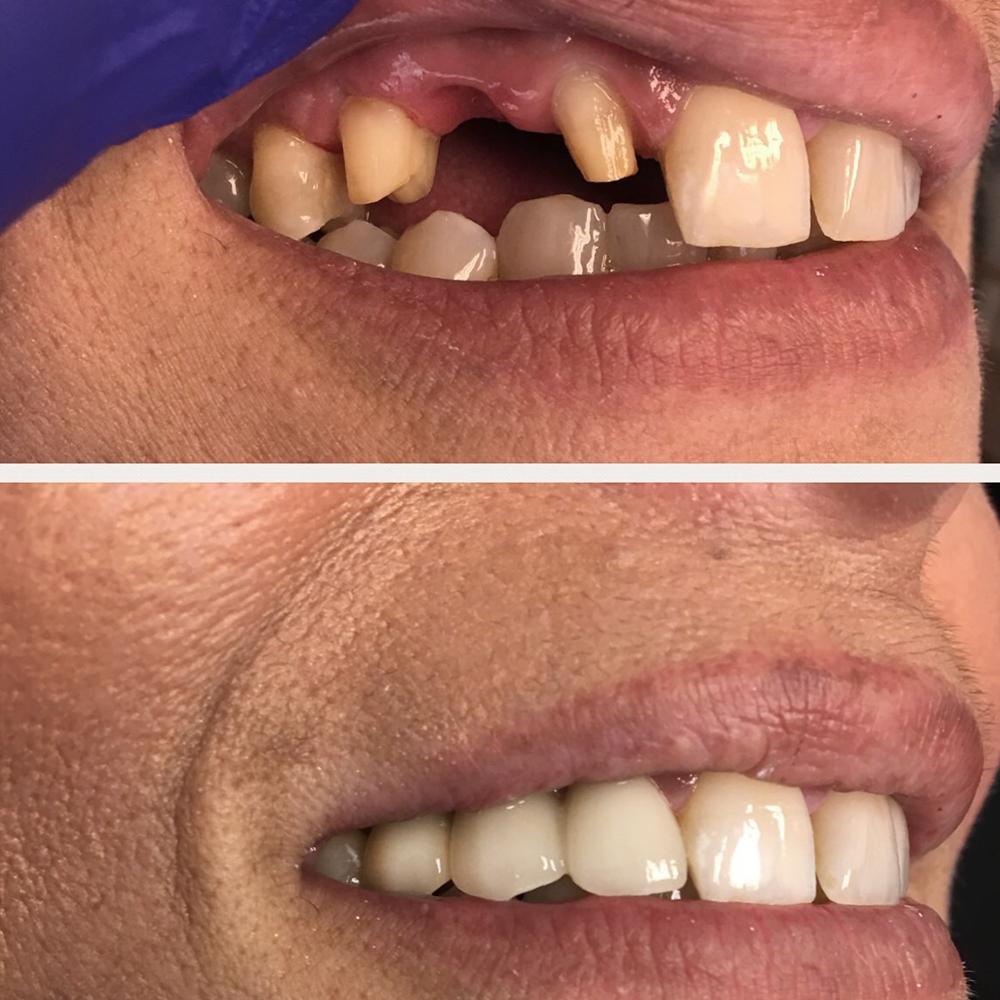 bridge teeth before and after.jpg