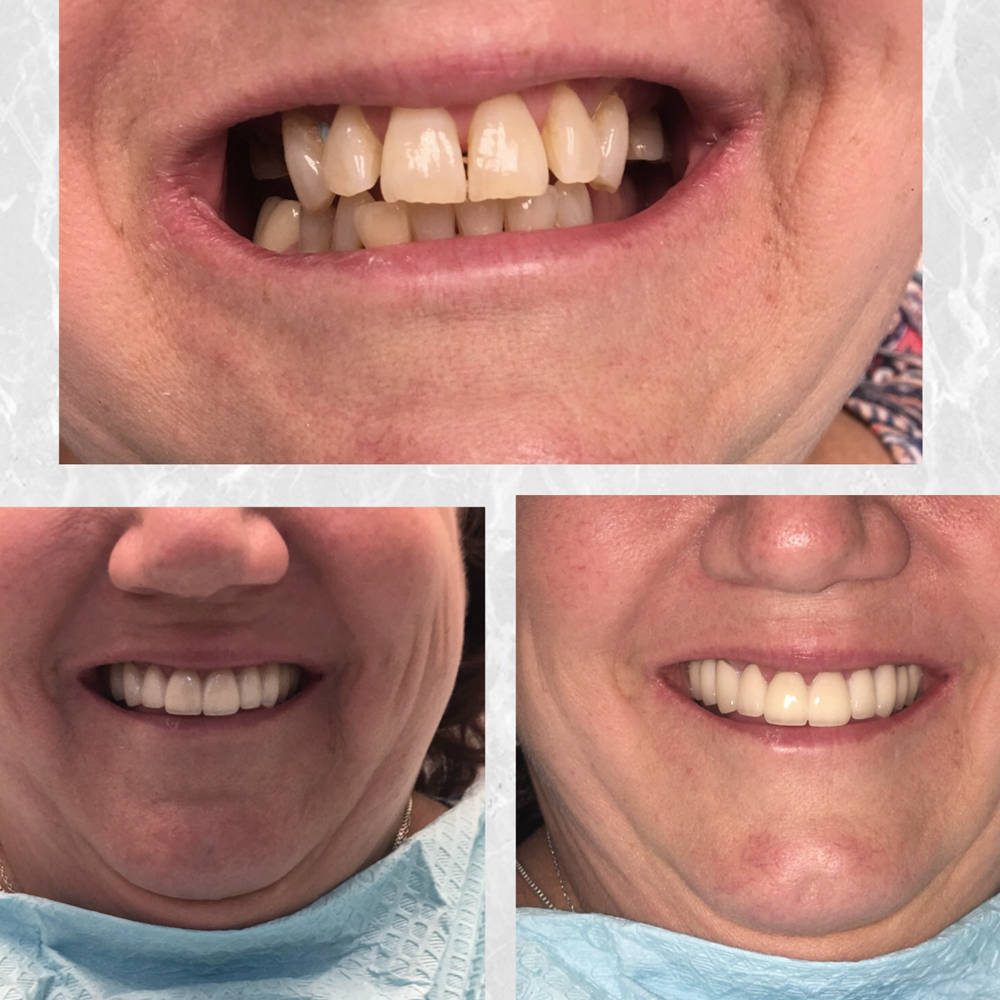 before and after smile evaluation.jpg