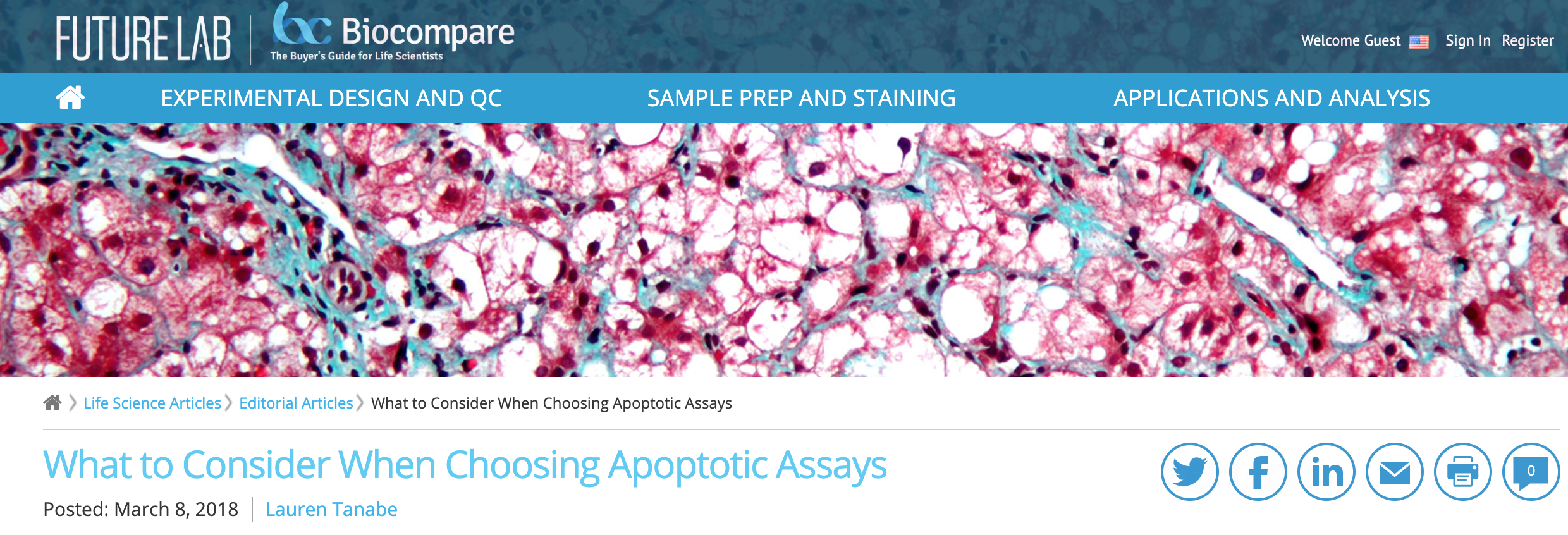 What to Consider When Choosing Apoptotic Assays, BioCompare, March 8, 2018 -