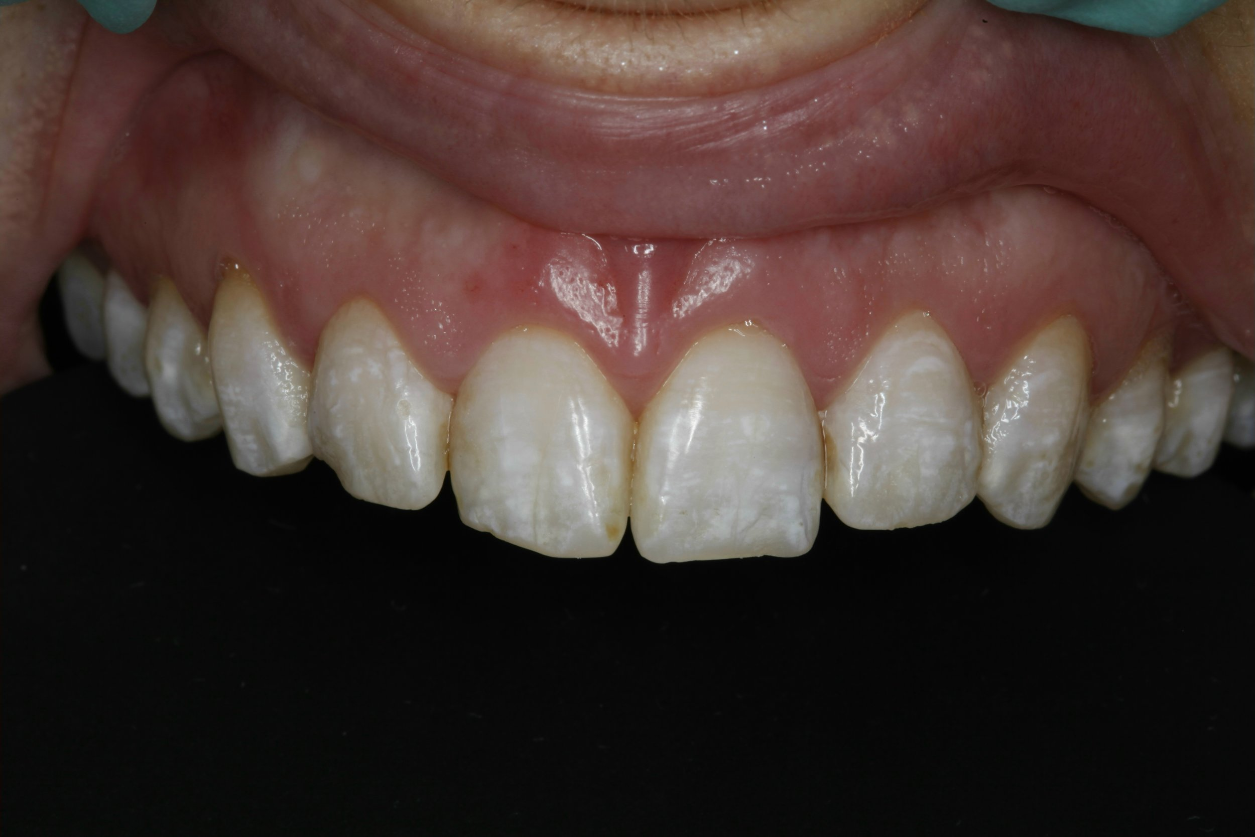 Restorative Dentistry - before