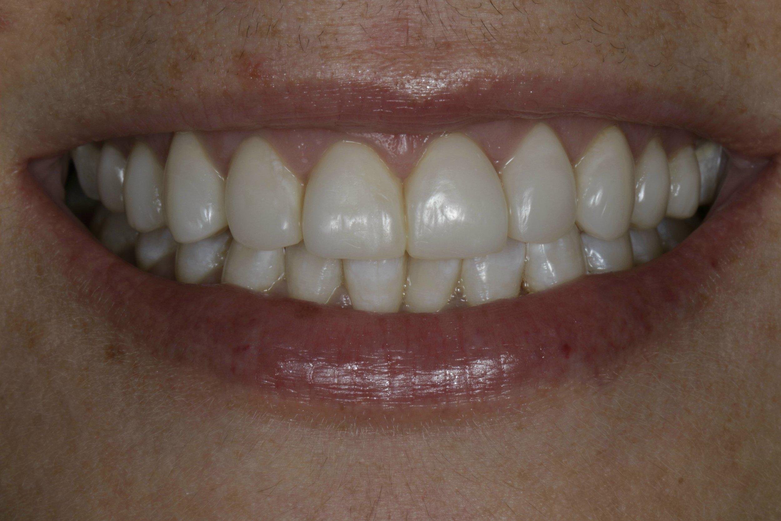 Restorative Dentistry - after