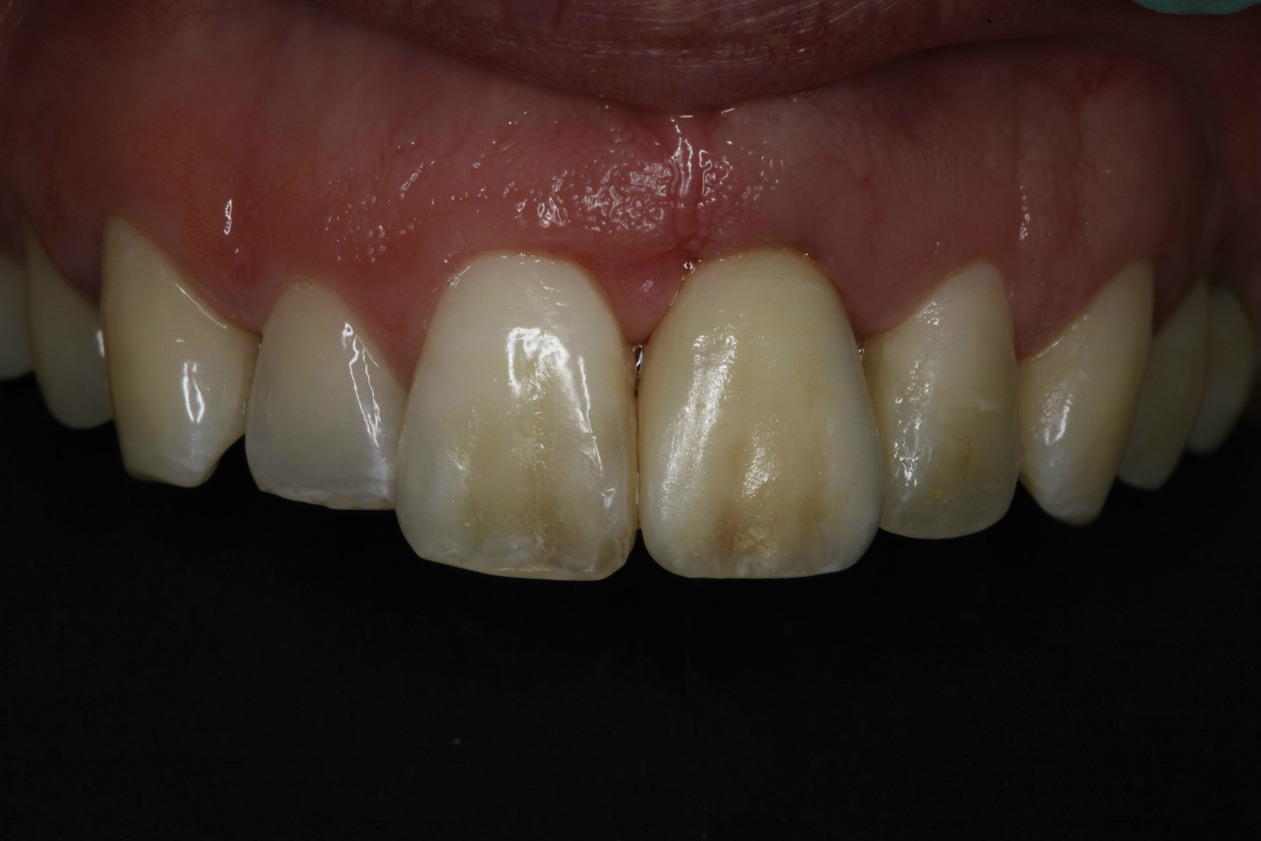 Implant Dentistry - after