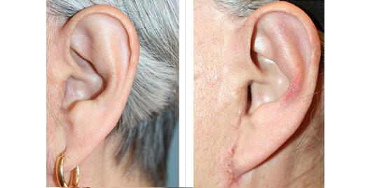 earlobe_repair_1.jpg