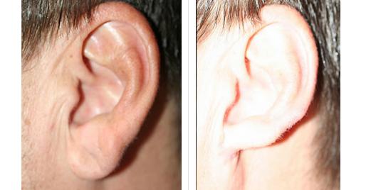 earlobe_repair_2.jpg