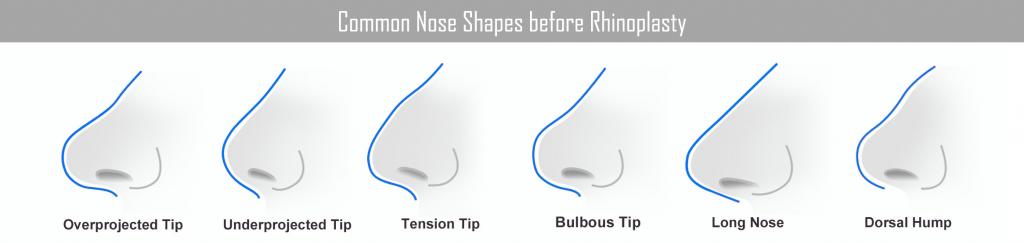 nose shapes rhinoplasty