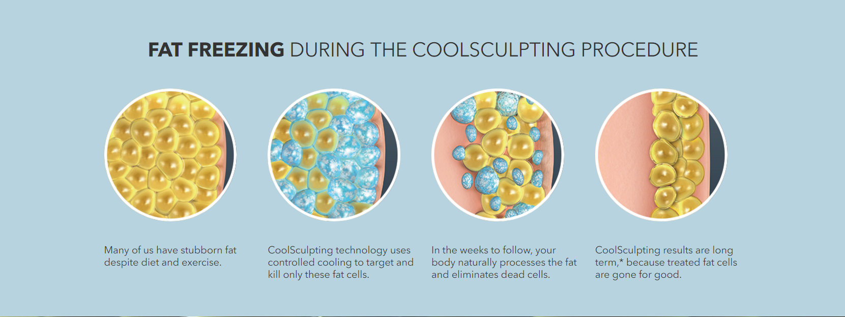 *Image courtesy of coolsculpting.com