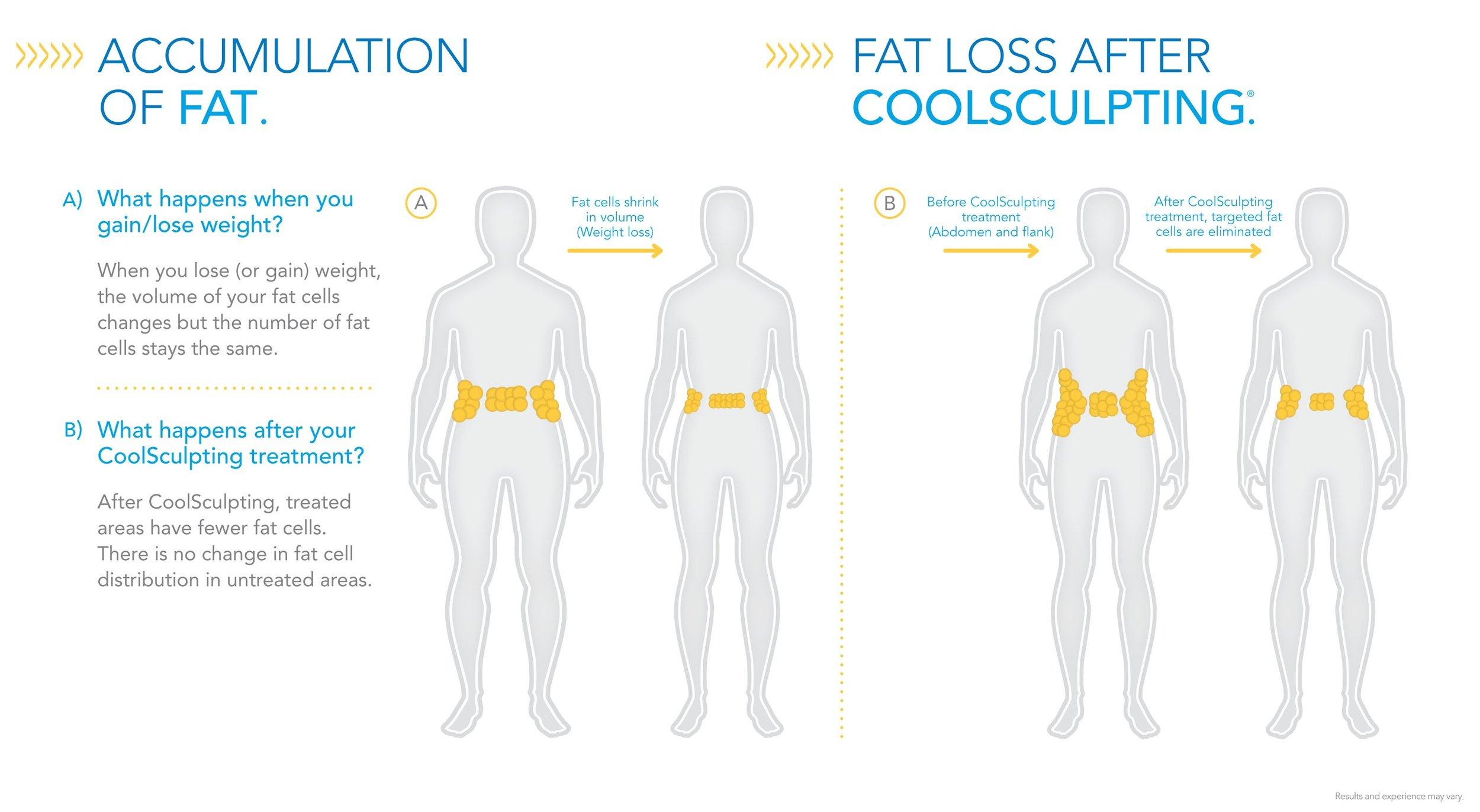 Accumulation-of-Fat-Fat-Loss-After-CoolSculpting1.jpg