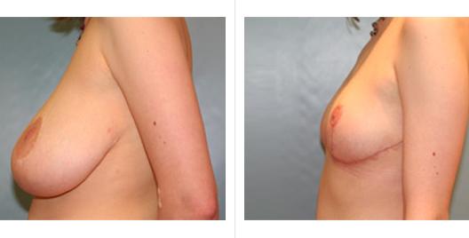 breast reduction_ba_1.jpg