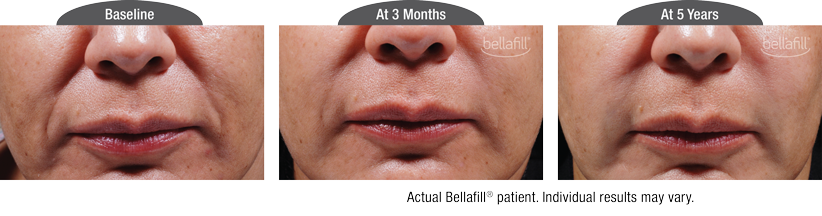 bellafill results