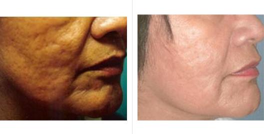 laser skin resurfacing_ba_3.jpg