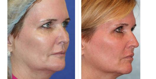 laser skin resurfacing_ba_6.jpg