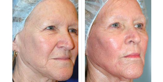 laser skin resurfacing_ba_7.jpg