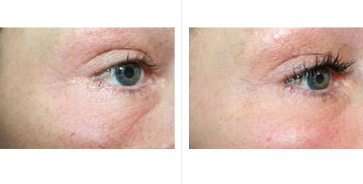 laser skin resurfacing_ba_9.jpg