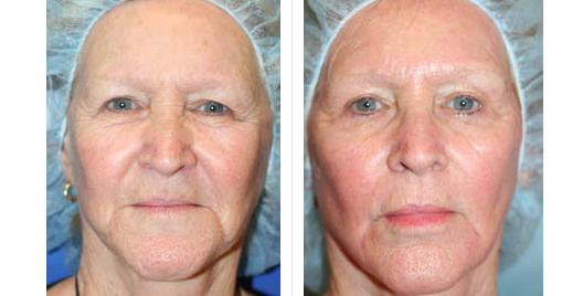 laser skin resurfacing_ba_10.jpg