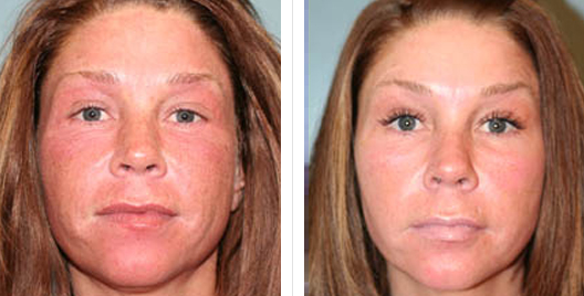 laser skin resurfacing_ba_12.jpg