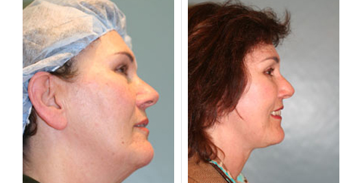 Face Lift Before and After