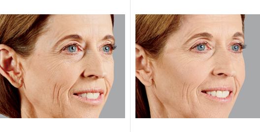 Juvederm Voluma Before and After