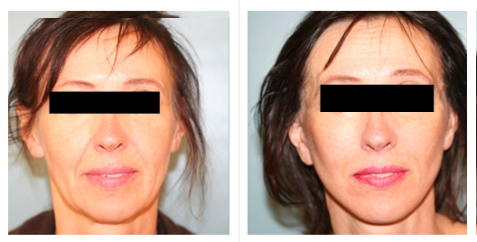 Cheek Lift Before and After