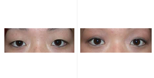 Asian Eyelid Surgery Before and After