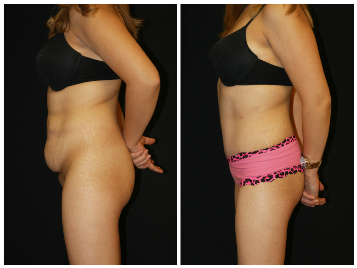 Abdominoplasty Tummy Tuck Before and After