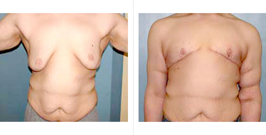 Surgery After Massive Weight Loss Before and After