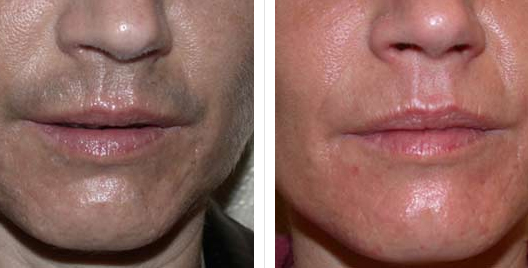 Laser Hair Removal Before And After Photos Usha Rajagopal Md
