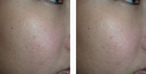 Dermabrasion Before and After