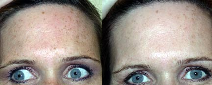 Sun Damage Treatments Before and After