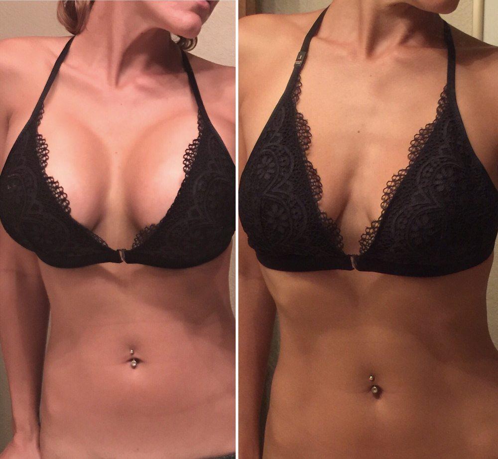 breast reduction_ba_6.jpg