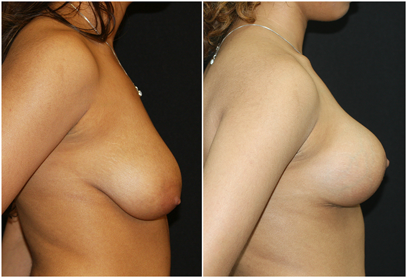 Breast Lift Before and After