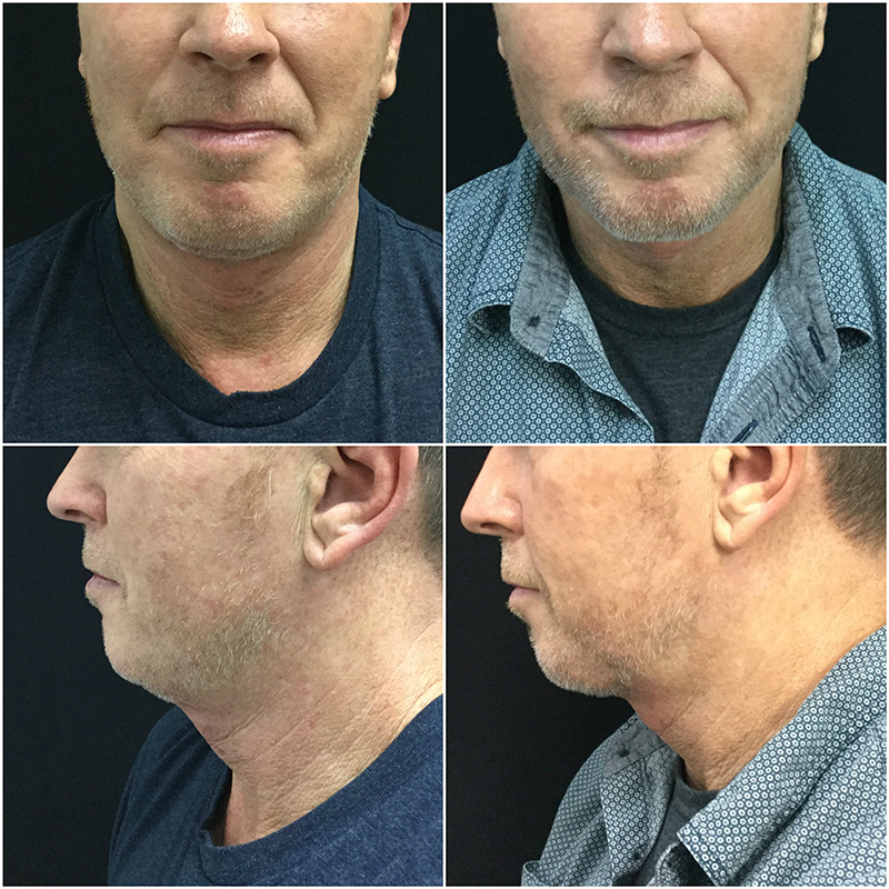 (left) Before Kybella (right) 3 months after treatment