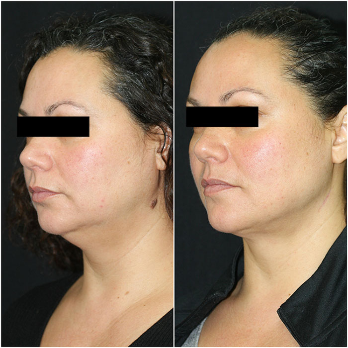 Chin Liposuction Before and After (3 Months Post-Op)
