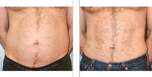 liposuction_ba_17.jpg