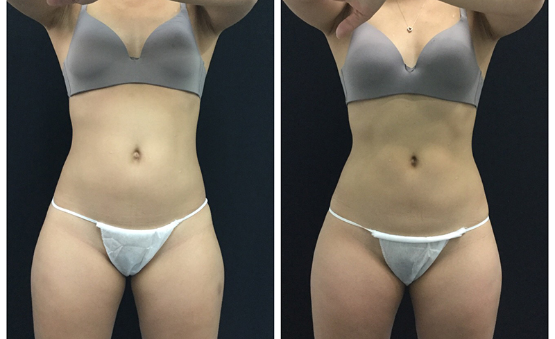 coolsculpting_before_after_15.jpg