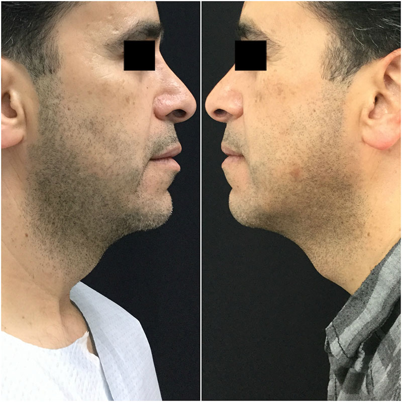 Ultherapy Before and After - Side Profile View