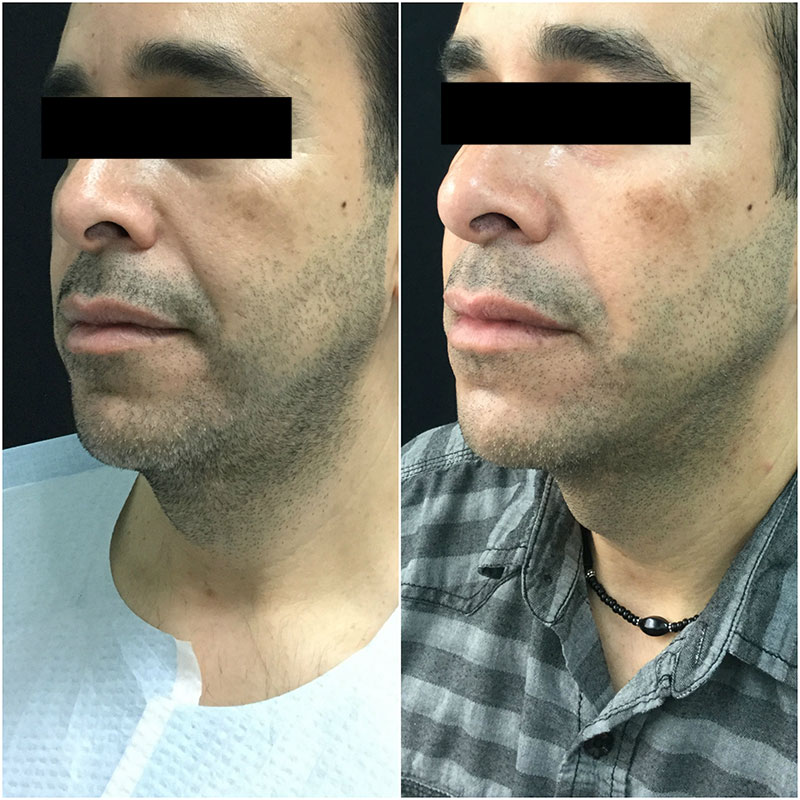 Ultherapy Before and After - Quarter View