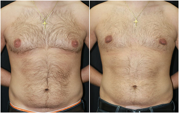 Male Breast Reduction (Gynecomastia) Before and After