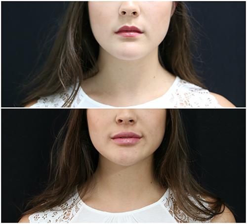 lip_augmentation_ba_14_web.jpg