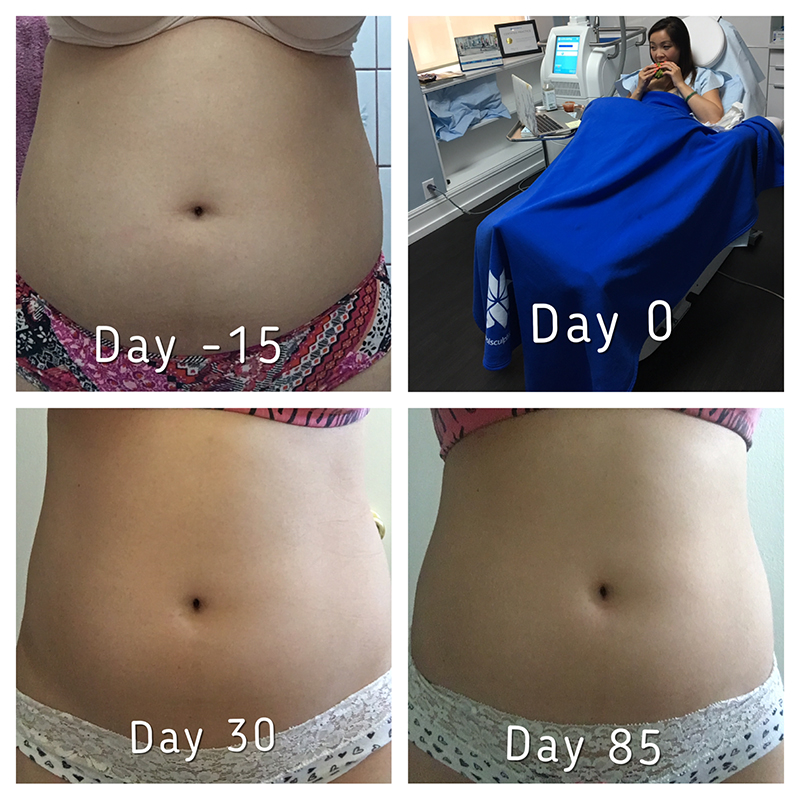 coolsculpting_before_after_16_800px.jpg