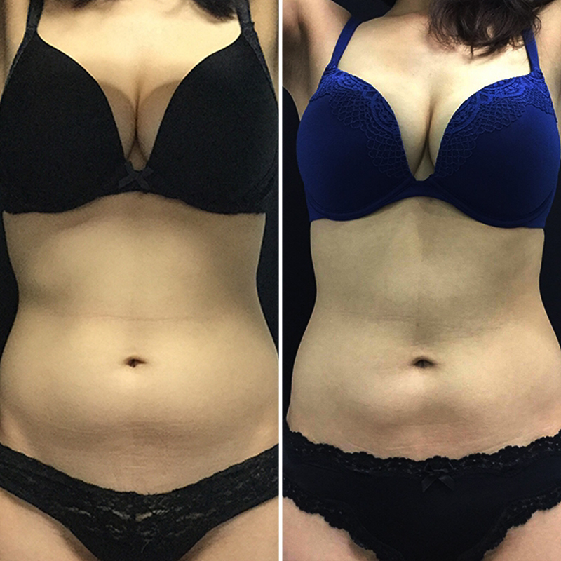 coolsculpting_before_after_17 copy.jpg