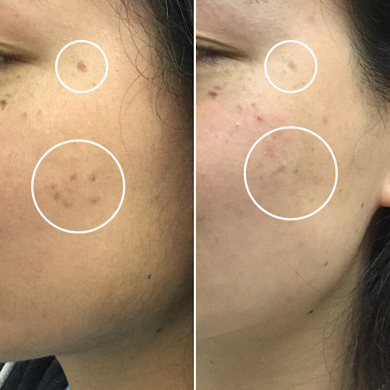 Laser Mole Removal Results after 3 Treatments
