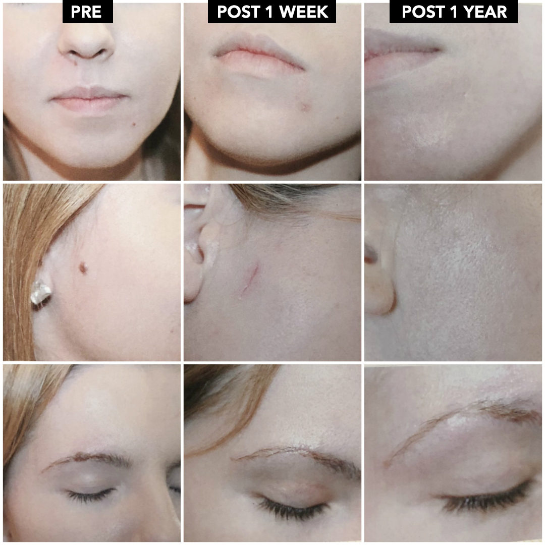 Mole Removal (Excision) Results Post 1 Week + Post 1 Year