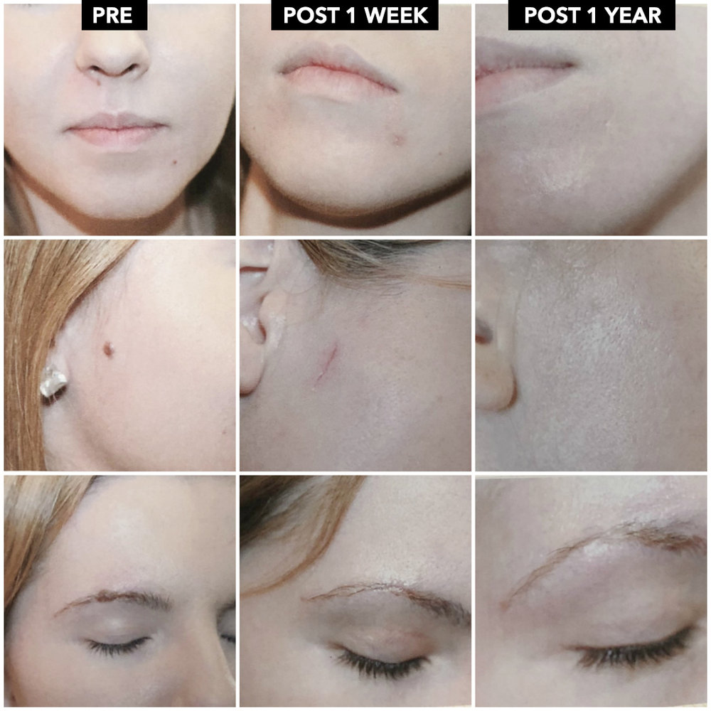 Excision recovery mole Surgical Excision