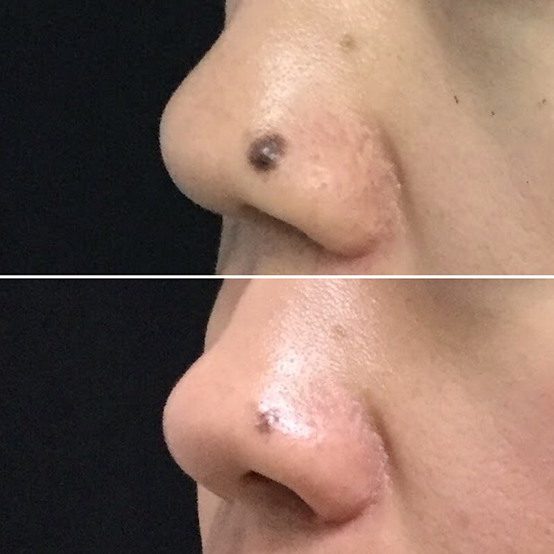 Mole Shaving Before and After