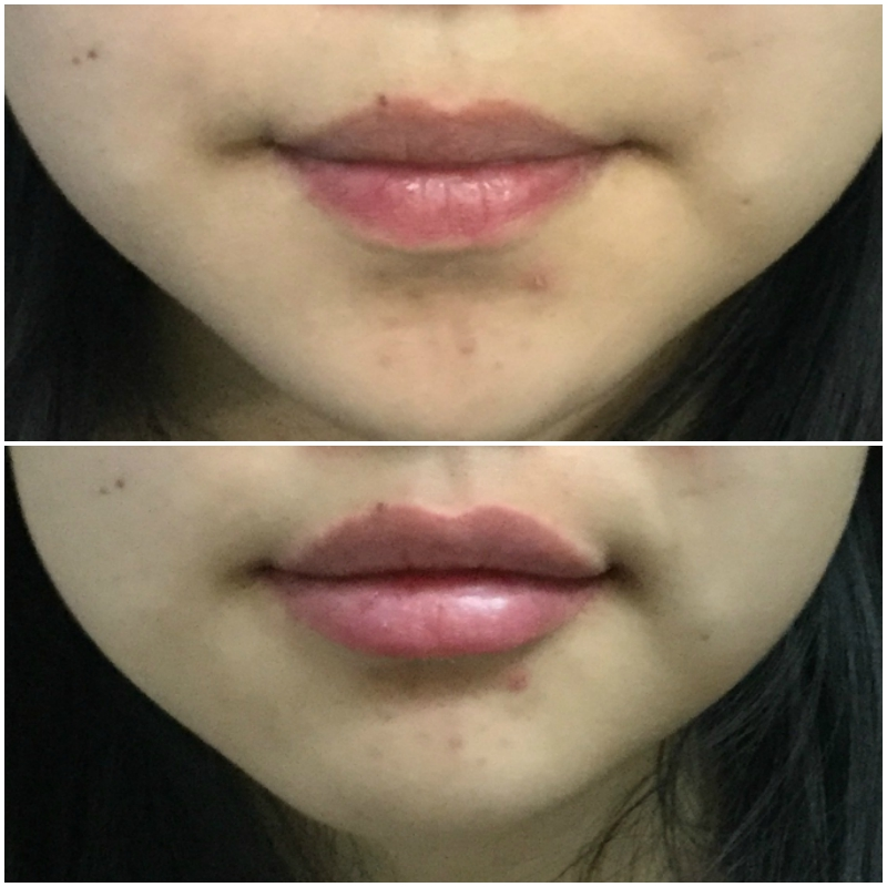 Lip Augmentation Injections Before and After
